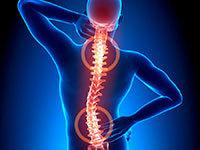 Прострел в пояснице: чем лечить острые боли - медикаменты, ЛФК, физиотерапия