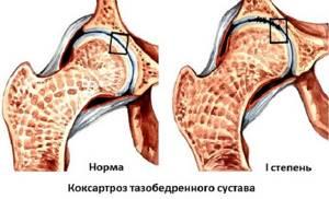 Артроз тазобедренного сустава 1 степени: лечение, симптомы
