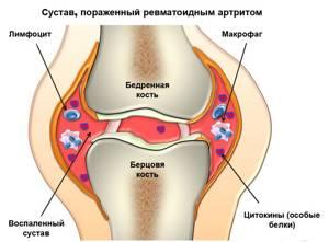Ломота в костях и суставах: причины и лечение