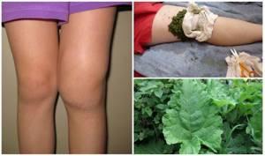 Как лечить коленные суставы народными средствами