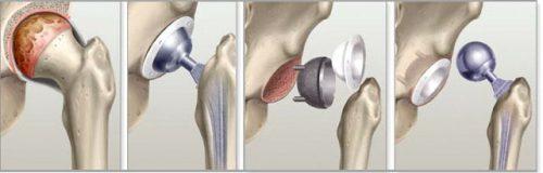 Эндопротезирование тазобедренного сустава, отзывы