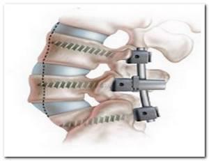 Спондилолистез позвоночника: лечение шейного, грудного и поясничного отдела