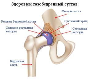 Почему хрустит тазобедренный сустав: основные диагнозы и диагностика