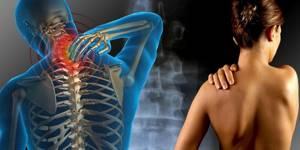 Дорсопатия позвоночника — что это такое. Симптомы и лечение