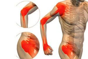Миозит мышц: виды, симптомы у детей и взрослых, методы лечения