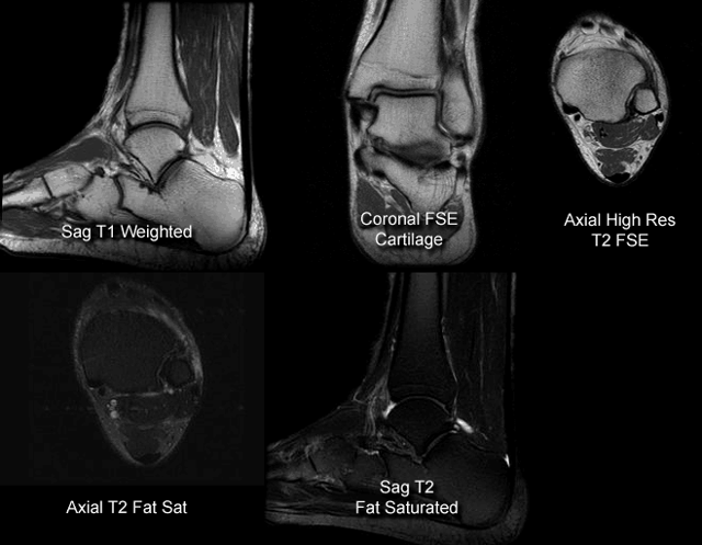 МРТ голеностопного сустава стопы: что показывает и как проходит