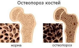 Как лечить остеопороз народными средствами с пользой