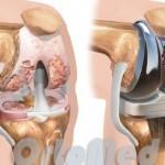 Эндопротезирование коленного сустава, отзывы после операции