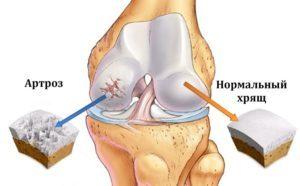 Хондропротекторы при артрозе коленного сустава: какие лучше, классификация