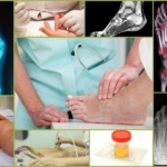 Подагрический артрит: лечение, симптомы, диета, фото, причины
