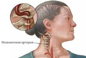 Кашель при остеохондрозе: причины, лечение и профилактика