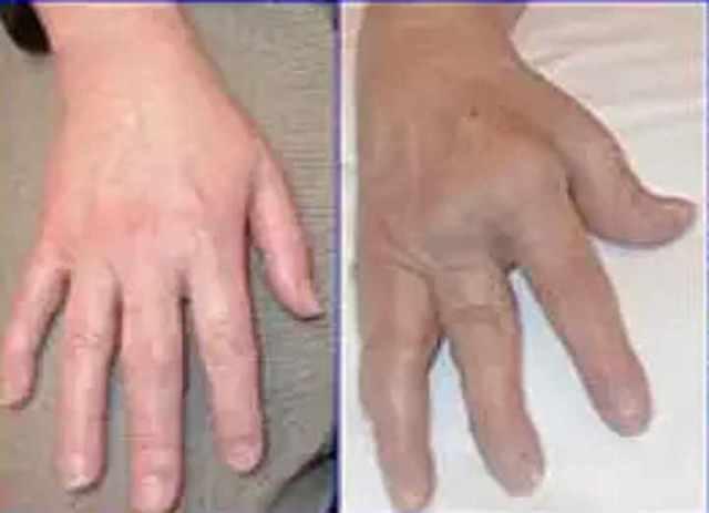 Артрит и артроз: в чем разница между заболеваниями, видео