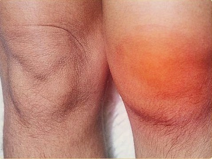 Артрит коленного сустава: симптомы и лечение, причины заболевания