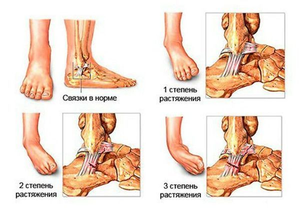 Растяжение связок стопы: что делать, лечение, причины, симптомы, первая помощь