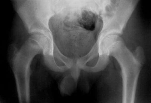 Рентген тазобедренного сустава: подготовка и проведение в отличии от МРТ