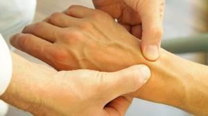 Лечение артроза лучезапястного сустава: медикаменты, физиотерапия и диета