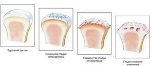 Какой врач лечит коксартроз тазобедренного сустава: очередность врачей