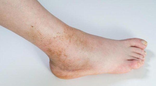 Синовит голеностопного сустава: способы лечения