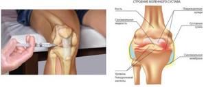 Лечение артроза коленного сустава 2 степени: симптомы, как лечить