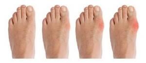 Воспаление суставов на ноге: причины, симптомы и лечение
