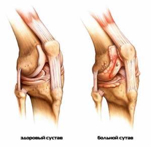 Жжение в коленном суставе: причины появления, методы лечения