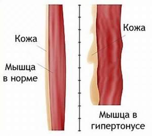 Магнитотерапия при остеохондрозе позвоночника и особенности ее применения