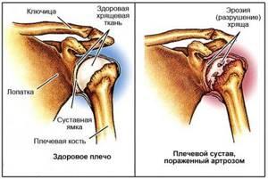 Плечелопаточный периартроз: симптомы и лечение при помощи физкультуры