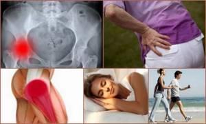Остеоартроз тазобедренного сустава, лечение 1,2,3 степени