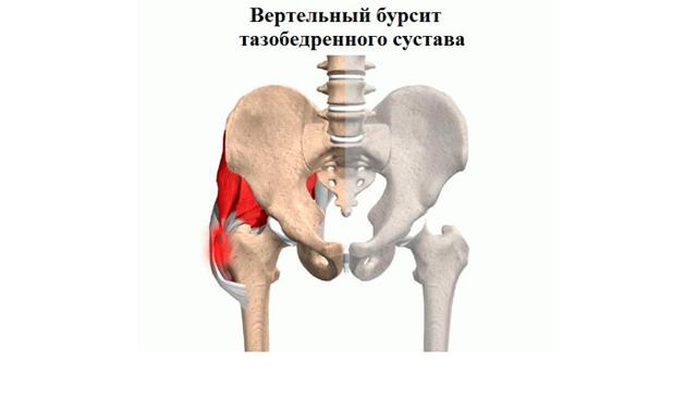Бурсит тазобедренного сустава: симптомы, лечение и виды