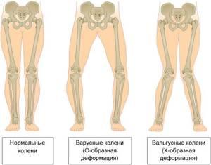 Вальгусная деформация коленных суставов у детей и взрослых