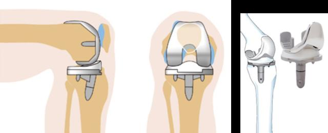 Эндопротезирование коленного сустава, операция, показания и противопоказания
