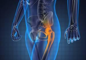 МРТ тазобедренных суставов: показания и расшифровка результатов.