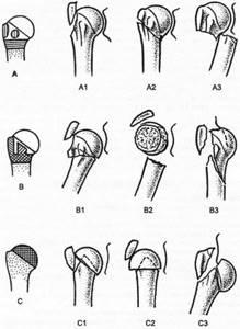 Видео: переломы проксимального отдела плечевой кости. А.А. Волна (Москва)