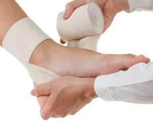 Вывих голеностопа: лечение, симптомы, причины травмы, первая помощь
