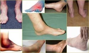 Деформирующий артроз голеностопного сустава: 1,2,3 степени