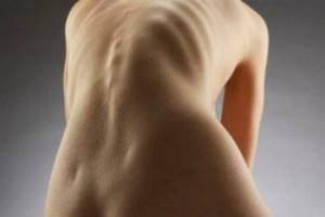 Мазь для суставов: список препаратов, какие мази для лечения боли в суставах лучше
