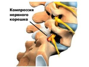 Остеохондроз с корешковым синдромом: симптомы и лечение