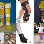 Ортопедические стельки при вальгусной деформации стопы у детей и взрослых: виды, принцип действия