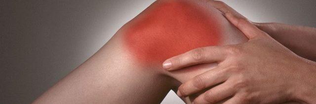 Лечение артроза коленного сустава народными средствами: рецепты