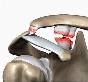 Разрыв акромиальной связки плеча: что делать?