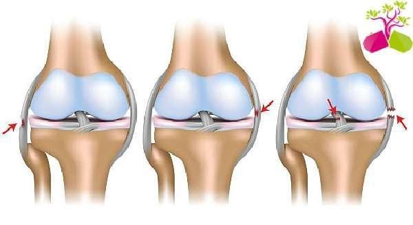 Болят суставы: лечение, причины появления боли в суставах