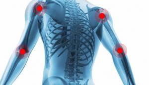 Ревматизм суставов: что такое, симптомы и лечение, отличия от ревматического