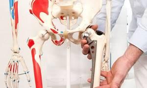 Эндопротезирование тазобедренного сустава, ценаоперации