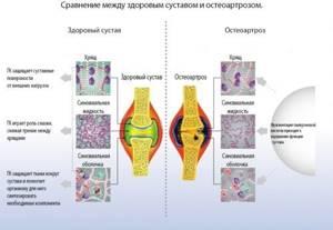 Остеоартроз коленного сустава 3 степени: лечение и операция