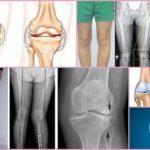 Артроз 3 степени: перспективы лечения без операции