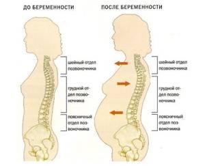 Грыжа поясничного отдела позвоночника и беременность: схемы лечения