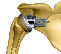 Ноющая боль в плечевом суставе: причины, способы лечения болей в плече