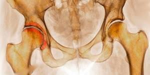 Диспластический коксартроз: что это и какие особенности лечения