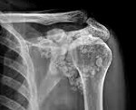 Синовиальный хондроматоз коленного сустава: симптомы и лечение