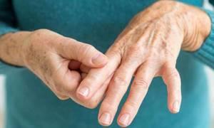 Хламидийный артрит: симптомы, диагностика, способы лечения